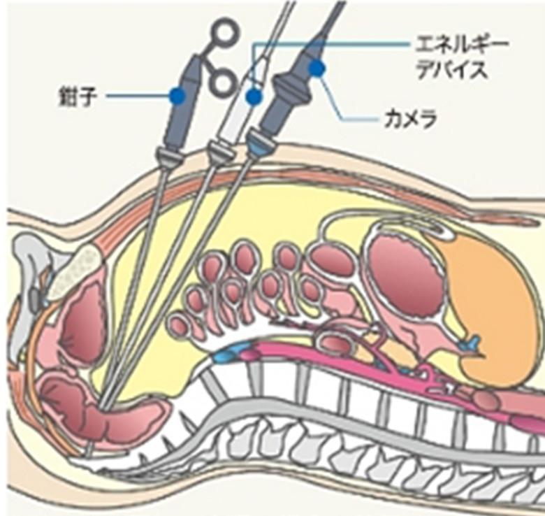 腹腔鏡手術について|大雄会 病...