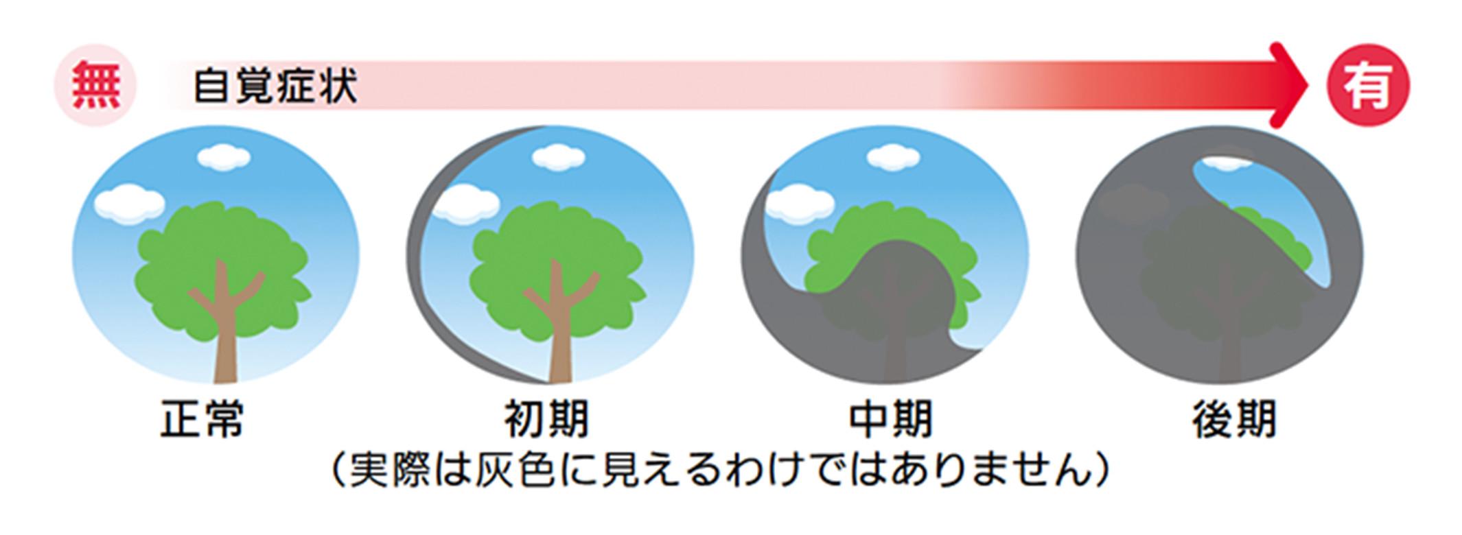 図1 視野の欠け方イメージ