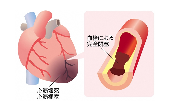 図2 心筋梗塞