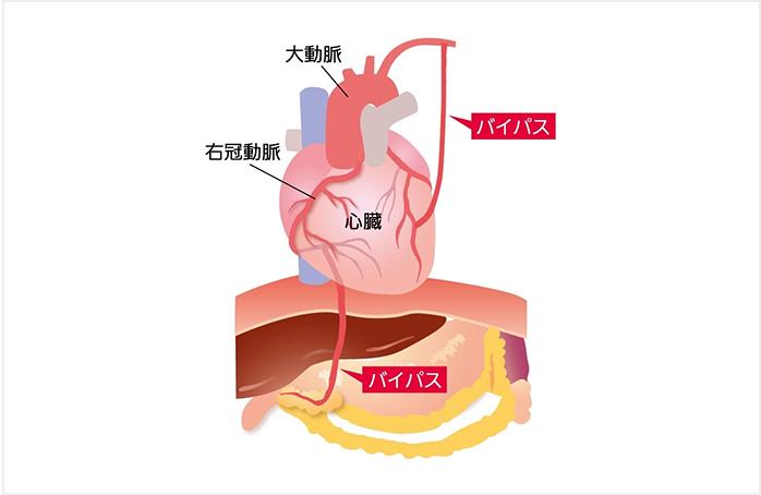 図4 冠動脈バイパス手術