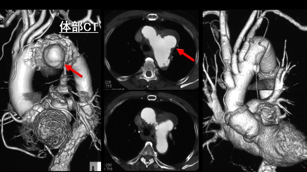 図3 遠位弓部大動脈癌に対する弓部全置換術(73歳男性)