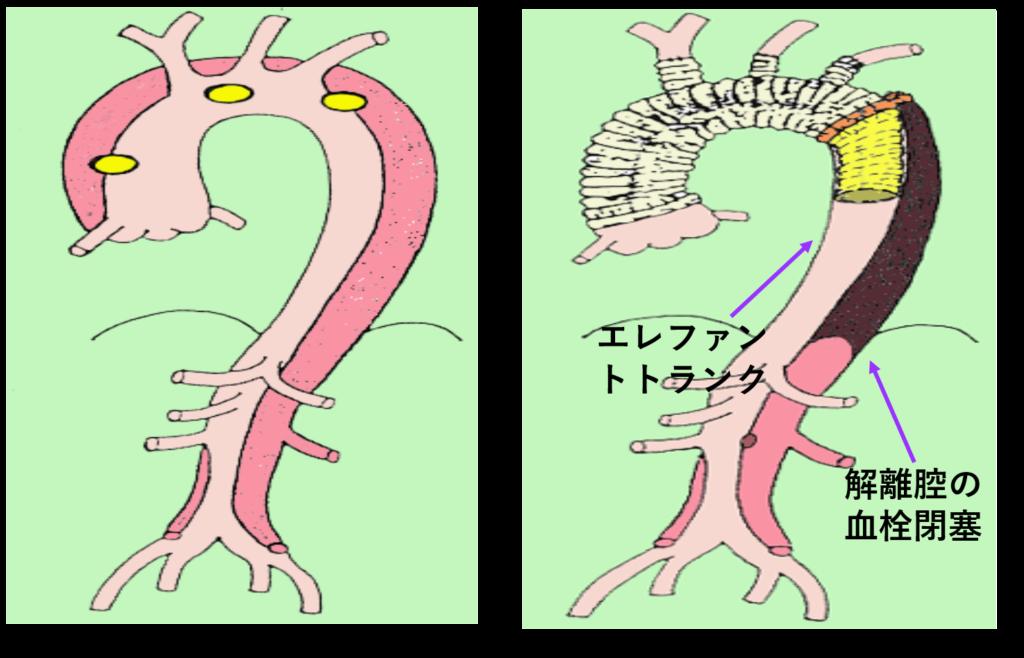 図5 急性A型解雄に対する上行弓部全置換術