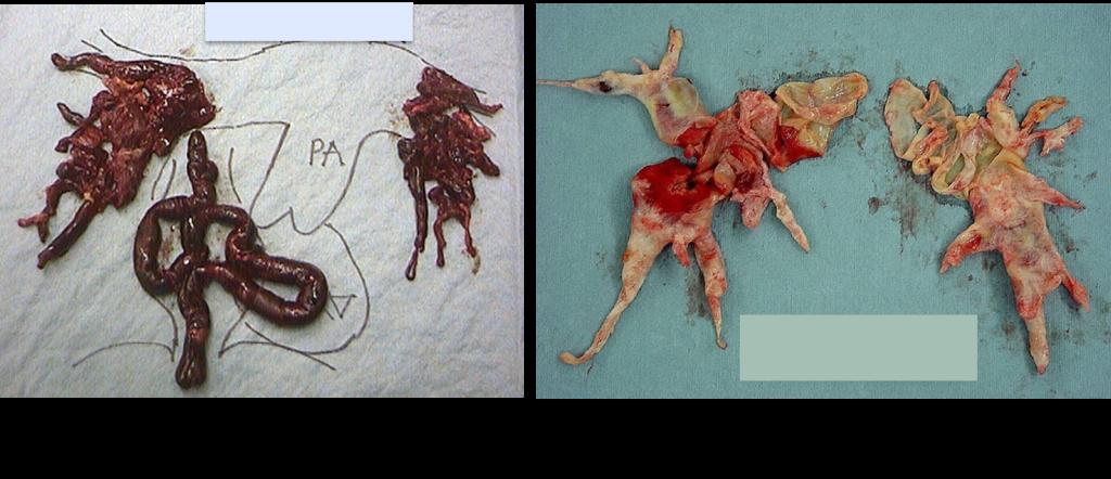 図6 A:急性肺血栓塞栓症とB:血栓塞栓性肺高血圧症の手術による摘除標本