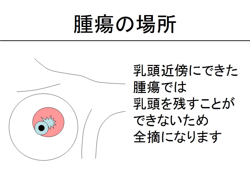 腫瘍の場所