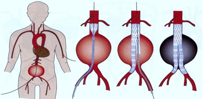 図4 腹部大動脈癌に対するステンドグラフと内挿術