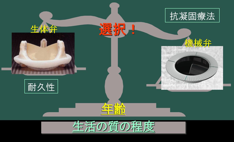 図2 弁置換時の人工弁の選択