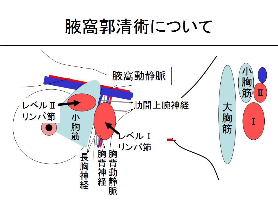 腋窩郭清術について