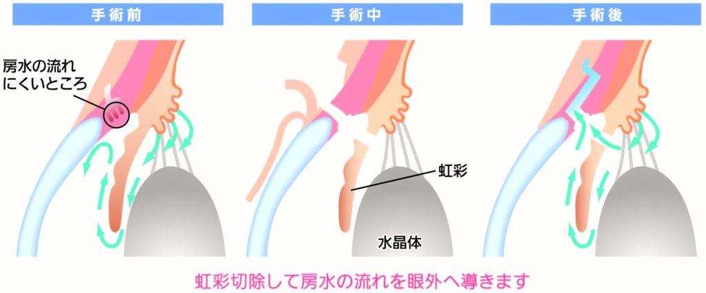 濾過手術(線維柱帯切除術)