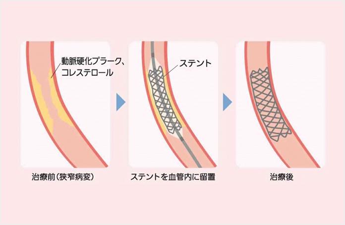 図3 経皮的冠動脈形成術