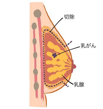 図1 (乳がん手術前)