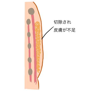 (乳がん手術後)